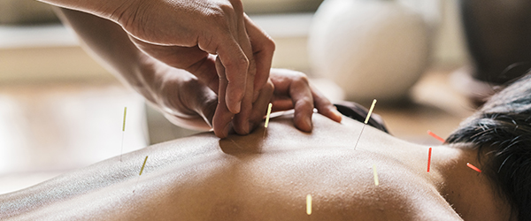 Acupuncture for Weight Loss-3